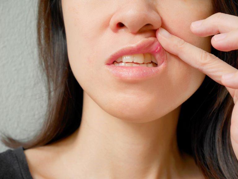 انواع زخم دهان