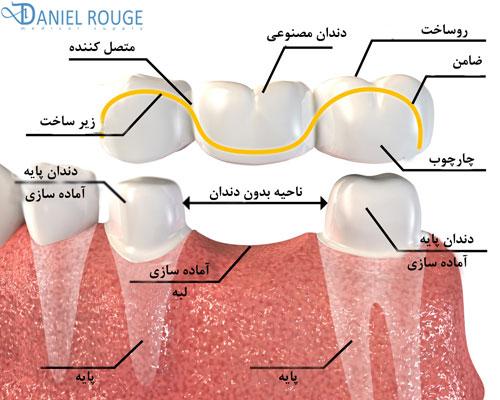 بخشهای مختلف بریج یا پل دندانی