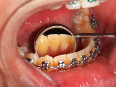 بریس دندانی