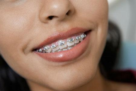 بهترین-مسواک-هنگام-داشتن-ارتودنسی-یا-دندانهای-نا-ردیف