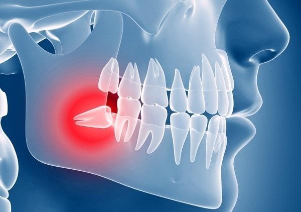 دندانهای عقل