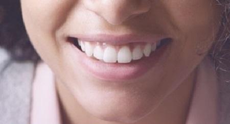 سایر مراقبت ها برای حفظ سلامتی دهان و دندان