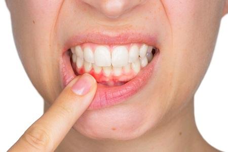 عوارض احتمالی جراحی ایمپلنت دندان شامل چه مواردی است؟