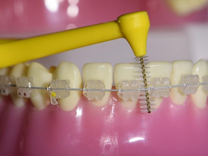 مسواک بین دندانی مخصوص ارتودنسی و بریس تمیزکردن پلاک زیر براکت ها