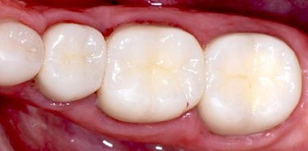 پرکنندههای کامپوزیت همرنگ دندان
