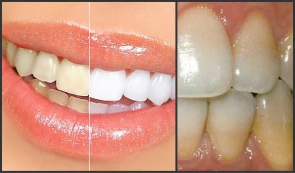 پلاک دندان منجر به ساخت شدن جرم میشود