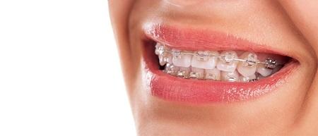 گرفتن بهترین نتیجه از ارتودنسی با مراقبهای صحیح از دهان