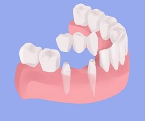 بریج یا پل دندانی