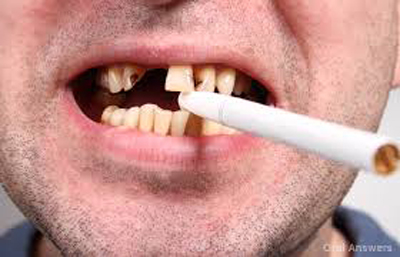 تاثیر سیگار بر افتادن دندان