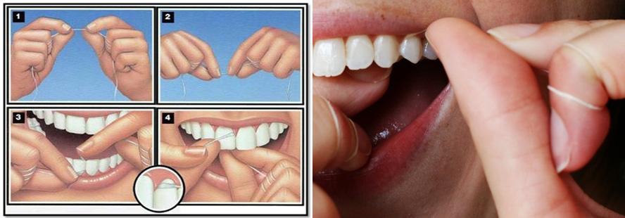 روش استفادهی صحیح از نخ دندان