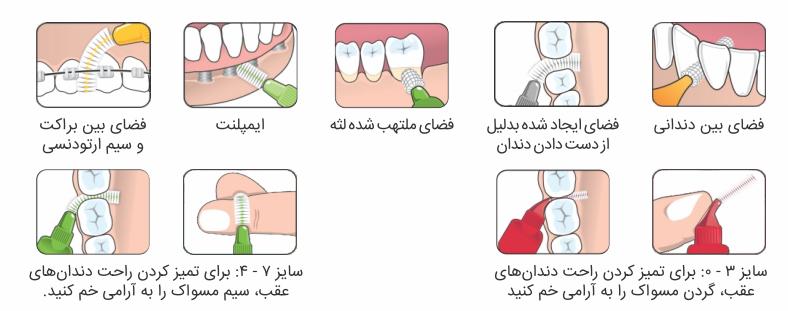 مسواک بین دندانی ،TEPE