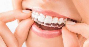 انواع محافظ دندان قروچه یا نایت گارد چگونه از دندانهای شما مراقبت میکنند؟