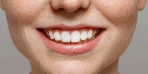 تقویت مینای دندان با رعایت بهداشت دهان و تغذیه صحیح