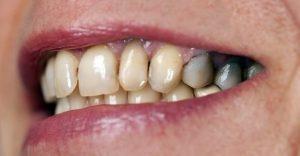 دلیل پوسیدگی دندانهای جلو و عقب در کودکان و بزرگسالان چیست؟