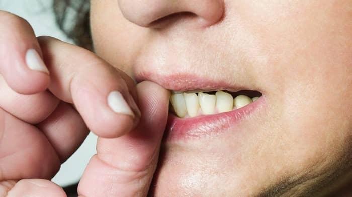 تأثیر جویدن ناخن روی دندان