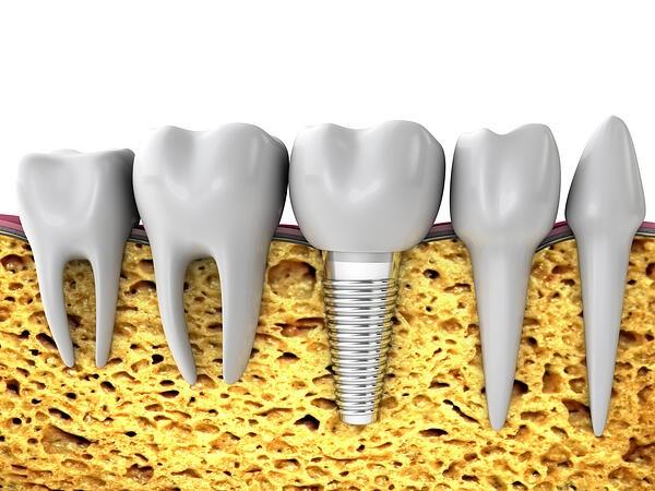 مراحل ایمپلنت دندان: معاینه، کاشت و مراقبت