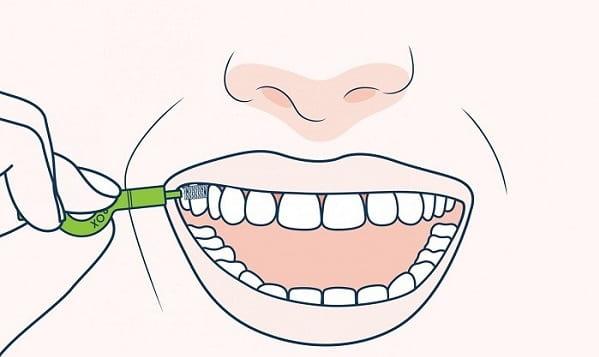 نحوه استفاده از مسواکهای بین دندانی