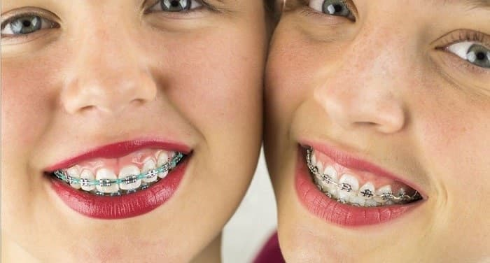 استفاده از نخ دندان در حین ارتودنسی