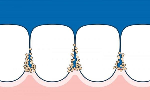 پلاک دندان در فضاهای بین دندانی پنهان میشود