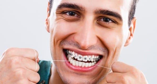 چگونه از نخ دندان ارتودنسی استفاده کنیم