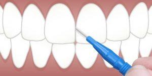 ژل بین دندانی