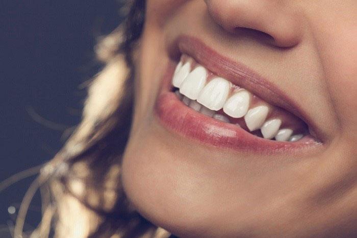مزایای لمینت دندان برای مرتب و سفید کردن دندانهای جلو